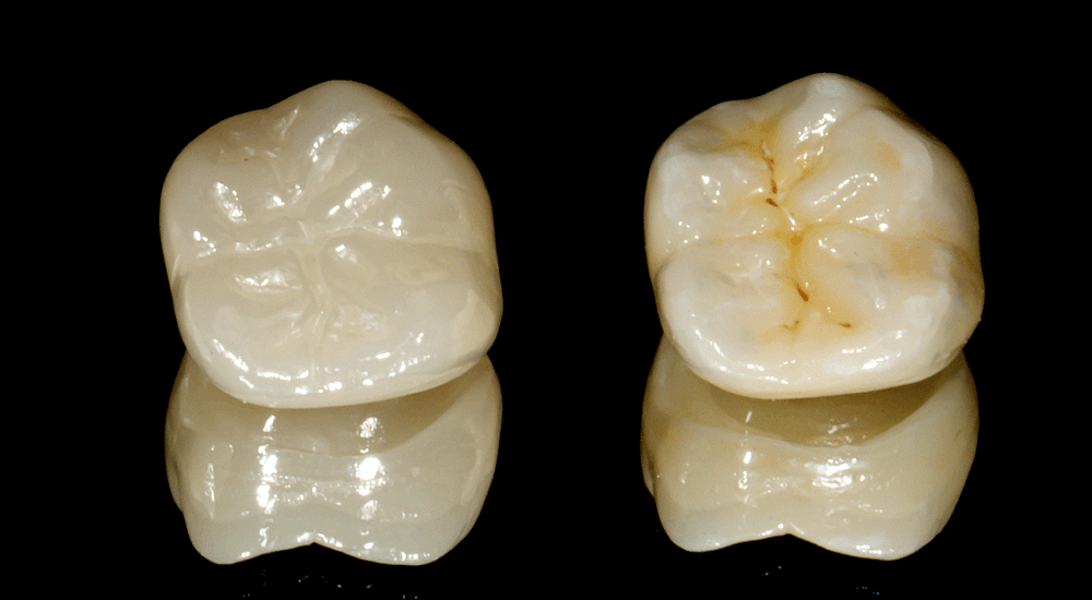 stain and glazing, polishing institute of digital dentistry