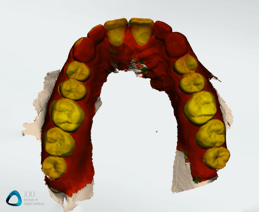caries-detection-trios-4-function-maxillary-arch-institute-of-digital-dentistry