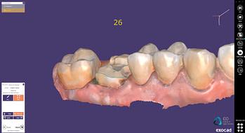 exocad crown workflow institute of digital dentistry (5)