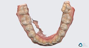 medit link software orthodontic simulator, model base creator, medit i700 institute of digital dentistry (10) 2