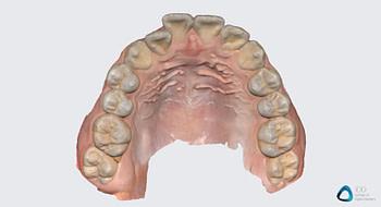 medit link software orthodontic simulator, model base creator, medit i700 institute of digital dentistry (11) 2