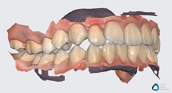 medit link software orthodontic simulator, model base creator, medit i700 institute of digital dentistry (9) 2