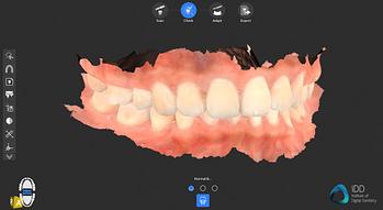 cs 3700 full arch scan institute of digital dentistry (3)
