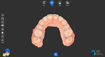 cs 3700 full arch scan institute of digital dentistry