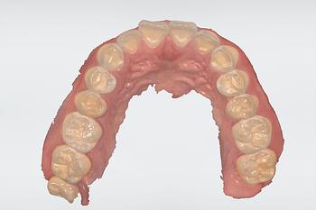 Full-arch-scanning-TRIOS-3SHAPE-TRIOS-4-maxillary-scan-institute-of-digital-dentistry
