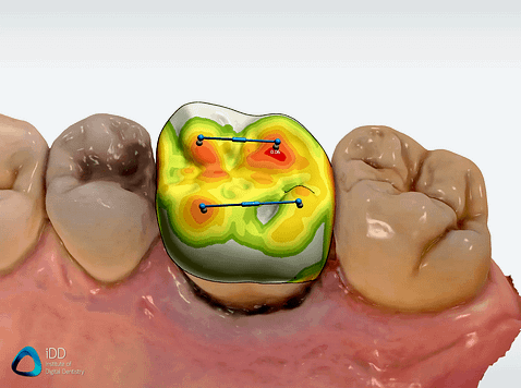 Shape-Design-Studio-crown-design-CAD-CAM-Institute-of-Digital-Dentistry