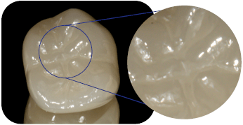Zirconia crown close up after polishing material institute of digital dentistry