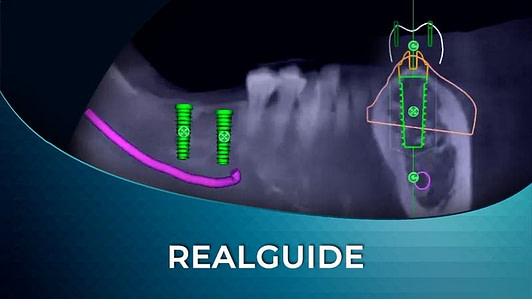 REALGUIDE IMPLANT SOFTWARE TRAINING ONLINE