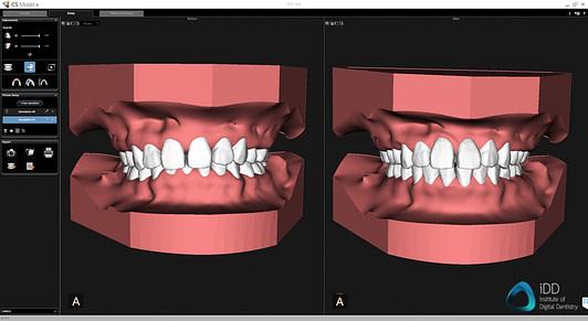 carestream dental cs 3700 model plus software orthodontic simulation institute of digital dentistry 2