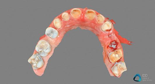 carestream dental full arch scan