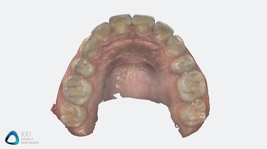 Heron Review Institute of Digital Dentistry Software (7)