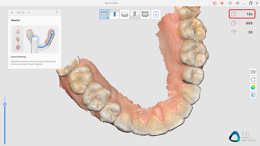 Medit i700 Full Arch Scan Institute of Digital Dentistry 2