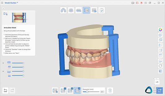 medit link software orthodontic simulator, model base creator, medit i700 institute of digital dentistry (6)