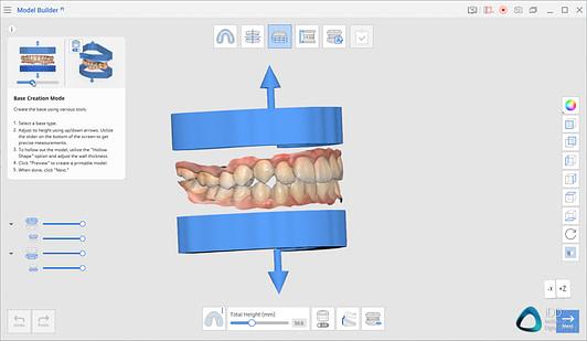 medit link software orthodontic simulator, model base creator, medit i700 institute of digital dentistry (7)