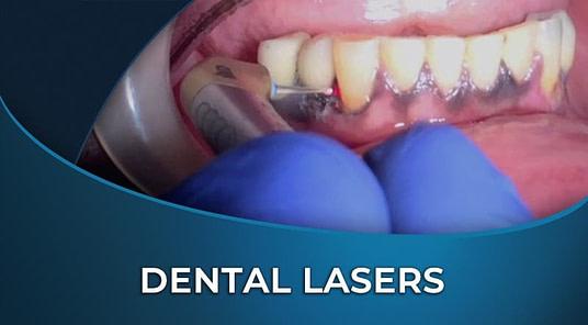 f9Mh2hgTRGrPCXXk7eik_Hard tissue lasers (1)