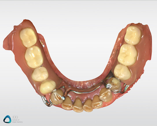CEREC Full arch scans Primescan review institute of digital dentistry (1)