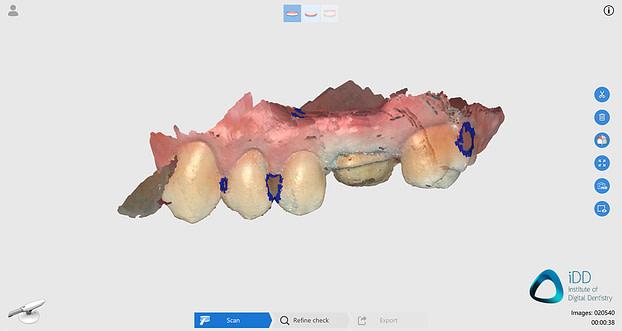 runyes ios scan before processing institute of digital dentistry final