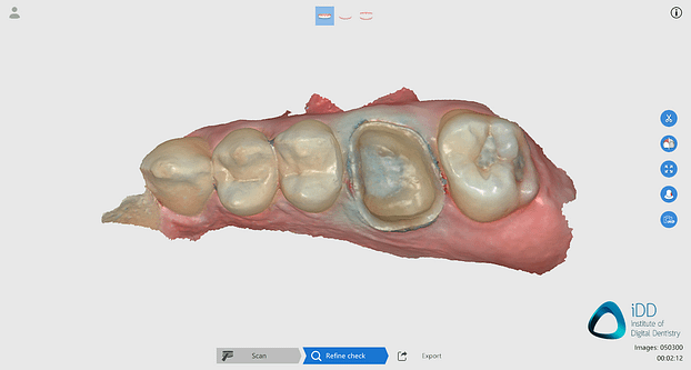 CROWN 2 runyes ios scan after processing institute of digital dentistry-2final