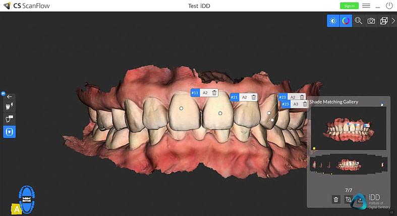 CS scan flow software institute of digital dentistry (1)