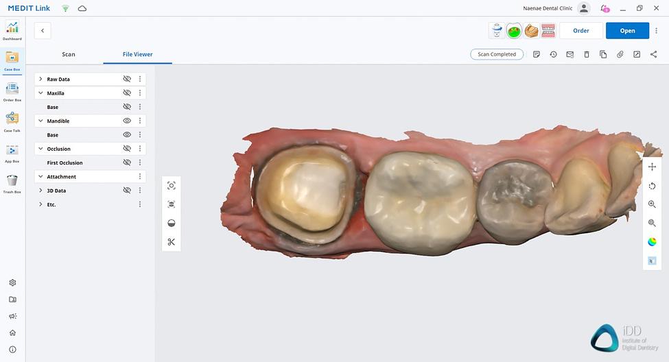 medit link software orthodontic simulator, model base creator, medit i700 institute of digital dentistry (16)